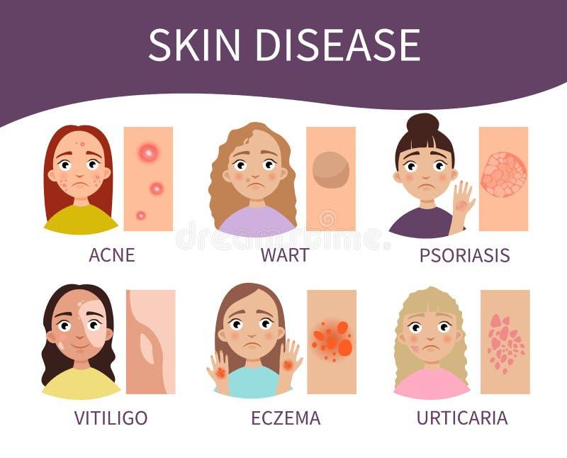 Doença de pele ilustração do vetor