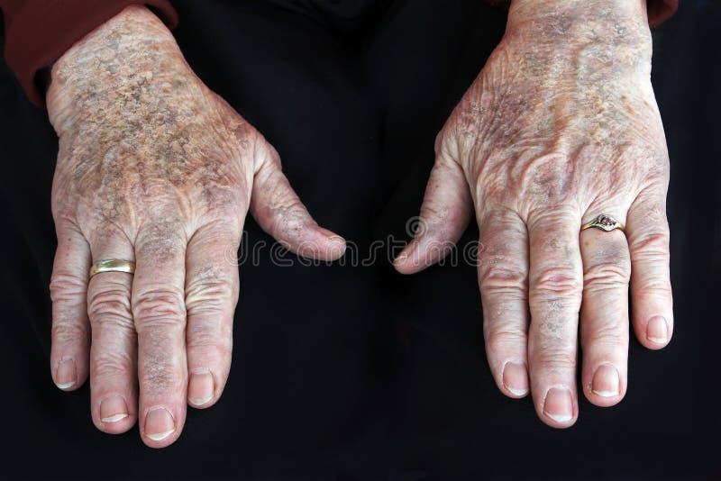 Doença de pele fotos de stock