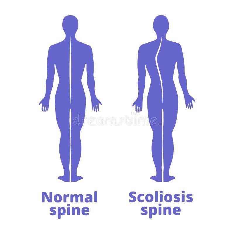 Doença de uma espinha scoliosis Defeito da postura do corpo Silhuetas humanas azuis Ilustração do vetor ilustração royalty free