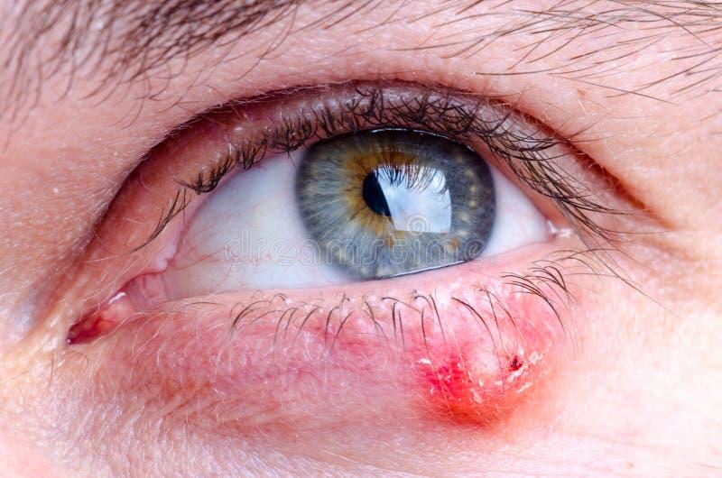Doença do hordeolum do chiqueiro no olho de uma fêmea caucasiano foto de stock royalty free