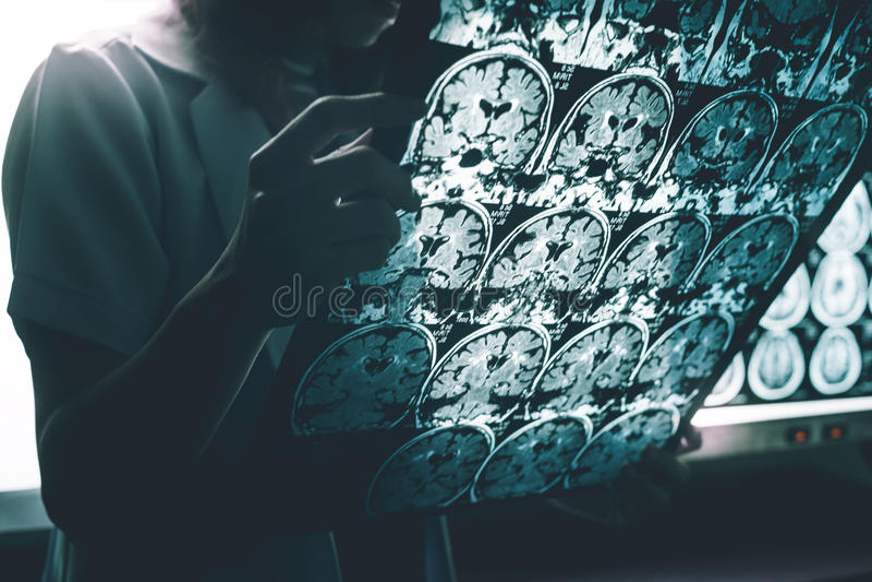 Doença do ` s de Alzheimer em MRI imagem de stock