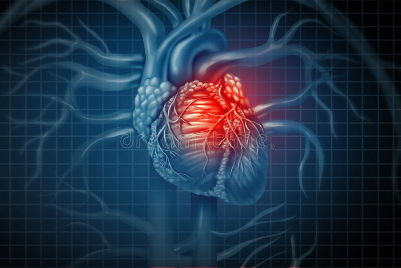 Doença médica do cardíaco de ataque ilustração do vetor