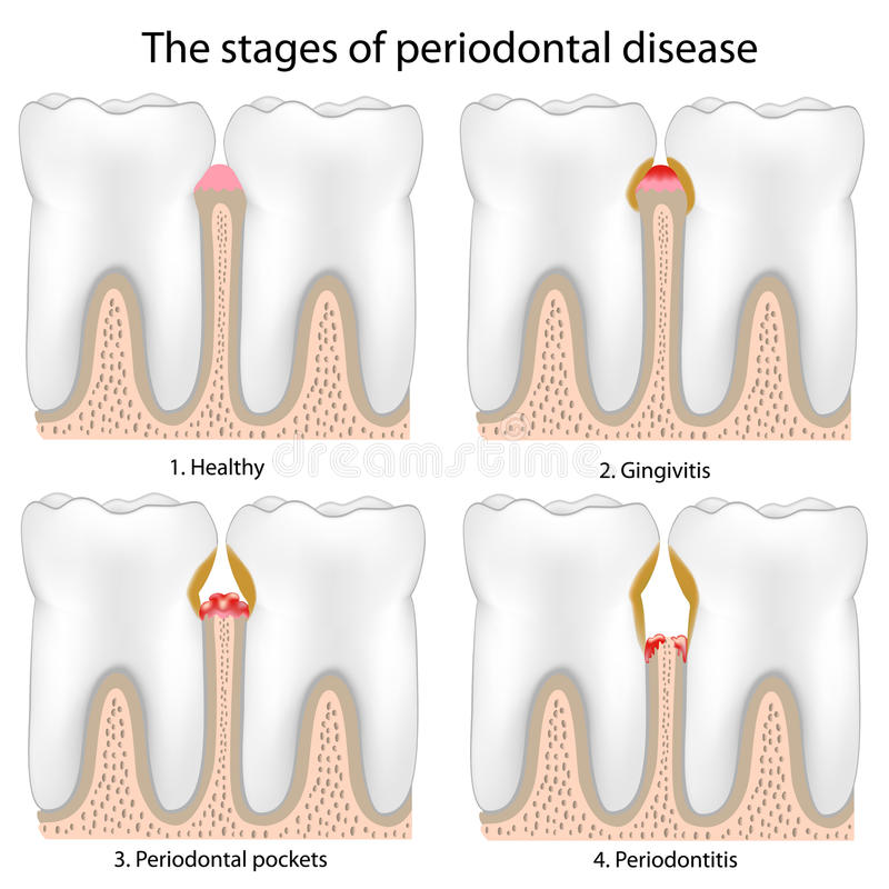 Doença peridental ilustração do vetor