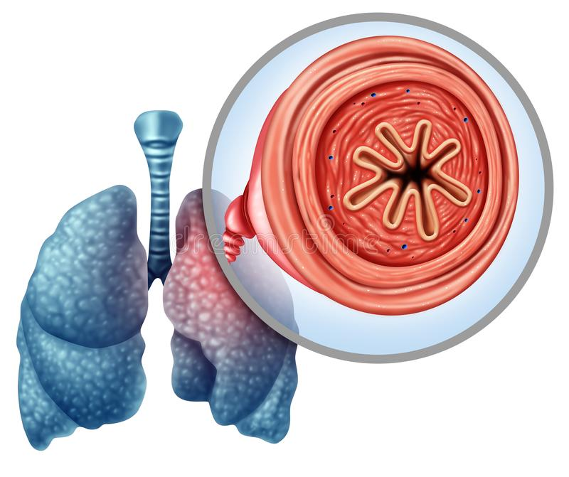 Doença pulmonar obstrutiva crônica de COPD ilustração stock
