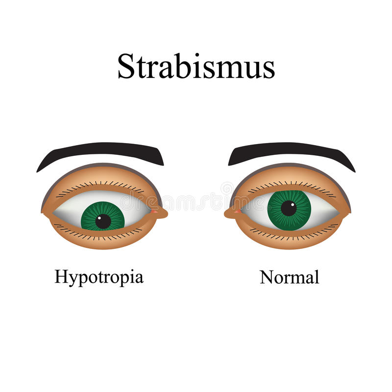 Doenças do olho - estrabismo Uma variação de ilustração royalty free