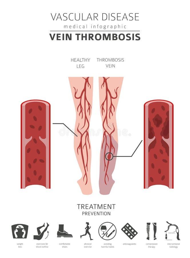 Doenças vasculares Sintomas da trombose da veia, grupo do ícone do tratamento ilustração royalty free