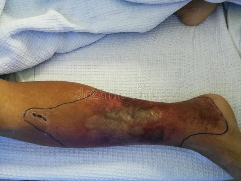 Doente diabético que se encontra deitado na cama e com as pernas inchadas e sintomas de vermelhidão foto de stock royalty free