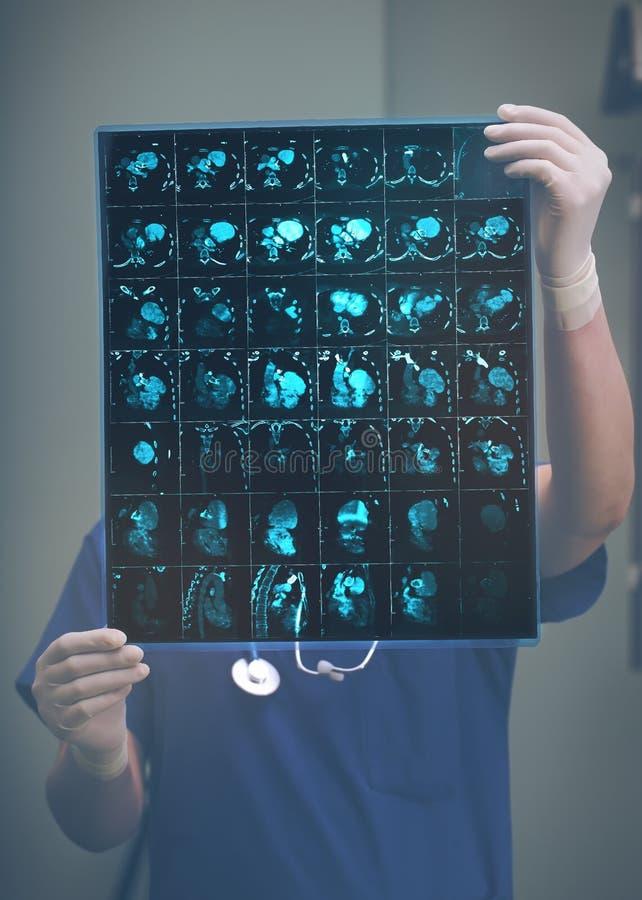 Doktor, der CT-Scan des Patienten überprüft stockbild