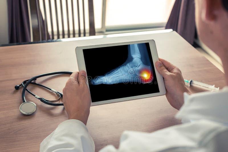 Doktor, der eine digitale Tablette mit R?ntgenstrahl des Fu?es und der Schmerz auf der Ferse h?lt lizenzfreies stockbild