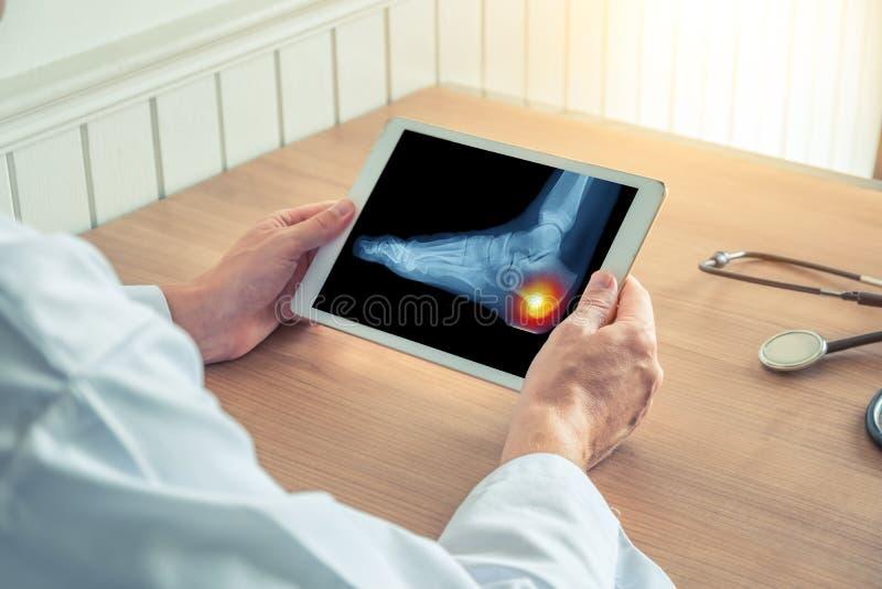 Doktor, der eine digitale Tablette mit R?ntgenstrahl und den Schmerz auf der Ferse des Fu?es h?lt lizenzfreie stockbilder