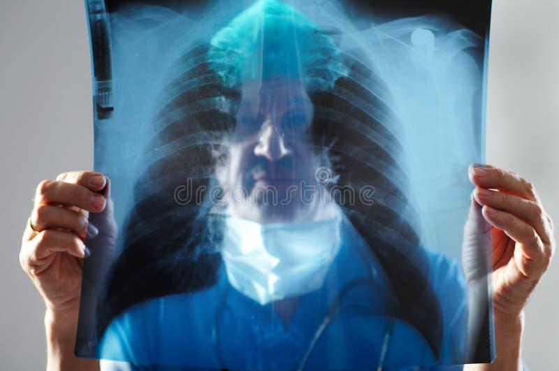 Doktor, der einen Röntgenstrahl betrachtet lizenzfreies stockbild