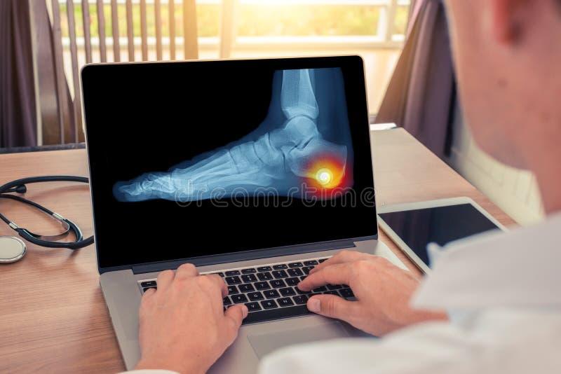 Doktor, der einen R?ntgenstrahl von Schmerz in der Ferse eines Fu?es aufpasst Radiologiekonzept stockfotos