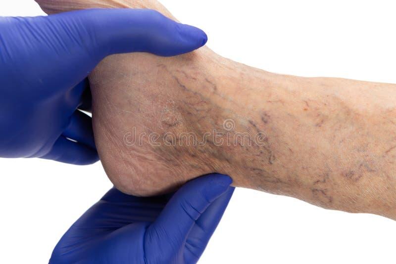 Doktor, der Krampfadern auf Knöchel überprüft stockbilder