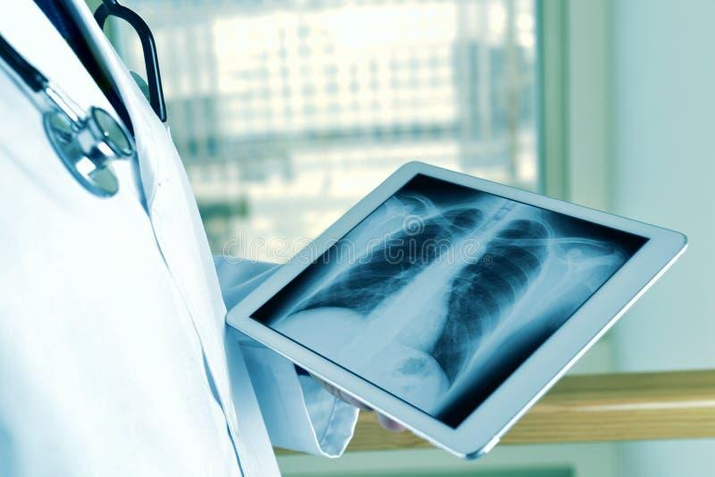 Doktor, eine Röntgenaufnahme des Thorax in einer Tablette beobachtend lizenzfreie stockfotografie