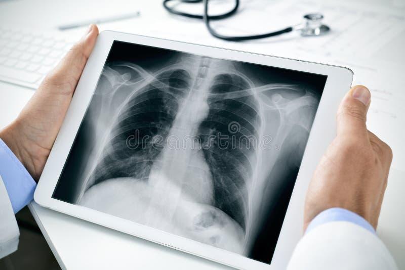 Doktor, eine Röntgenaufnahme des Thorax in einer Tablette beobachtend stockbild