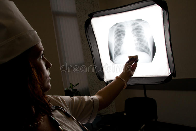 Doktor mit Brustradiographie lizenzfreie stockbilder