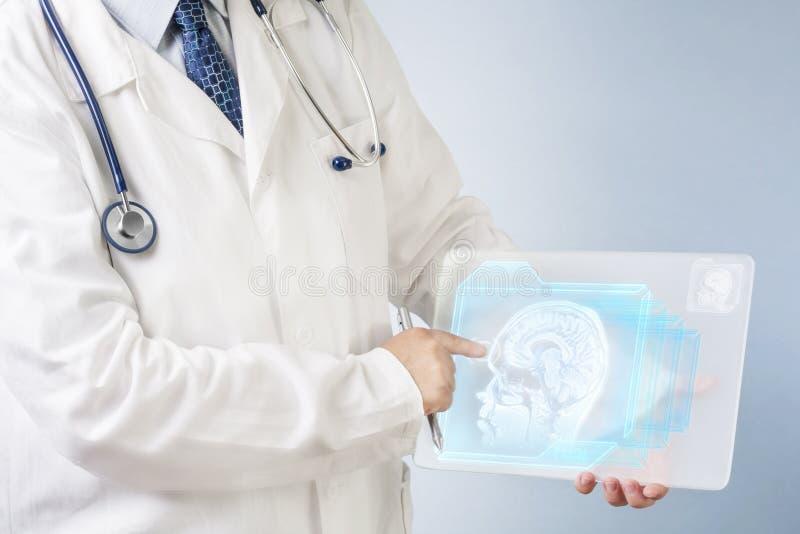 Doktor som analyserar hjärnbild royaltyfri fotografi