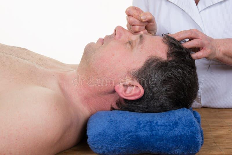 Doktor som gör akupunktur av huvudet arkivbilder
