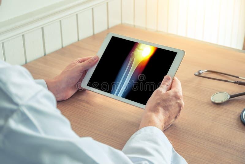 Doktor som rymmer en digital minnestavla med röntgenstrålen av benet Smärta på det inre knäet royaltyfri fotografi