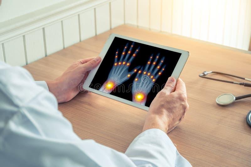 Doktor som rymmer en digital minnestavla med r?ntgenstr?len av h?nder Sm?rta p? skarvarna av fingrarna och handlederna Osteoarthr royaltyfria bilder
