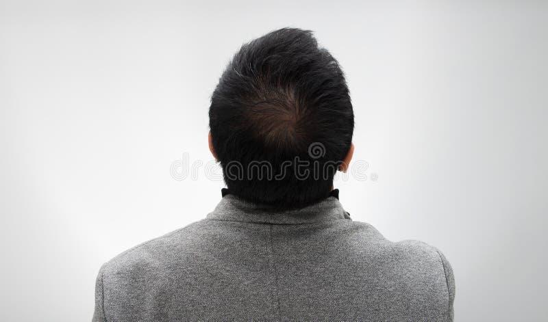 Doktor spritzen Behandlungsserumvitamin-Haarfall ein lizenzfreie stockfotos