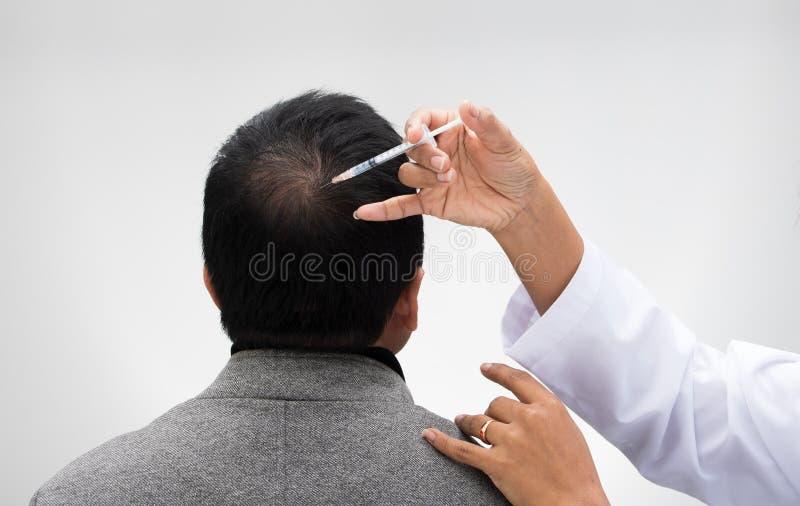 Doktor spritzen Behandlungsserumvitamin-Haarfall ein lizenzfreies stockfoto
