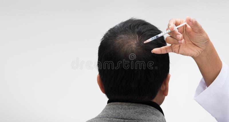 Doktor spritzen Behandlungsserumvitamin-Haarfall ein lizenzfreie stockfotografie