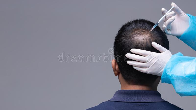 Doktor spritzen Behandlungsserumvitamin-Haarfall ein lizenzfreies stockbild