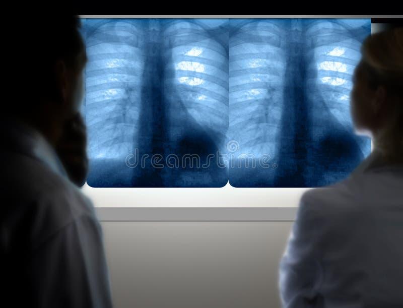 Doktoren, die Lungenkrebs vom Röntgenstrahl bestimmen lizenzfreies stockbild