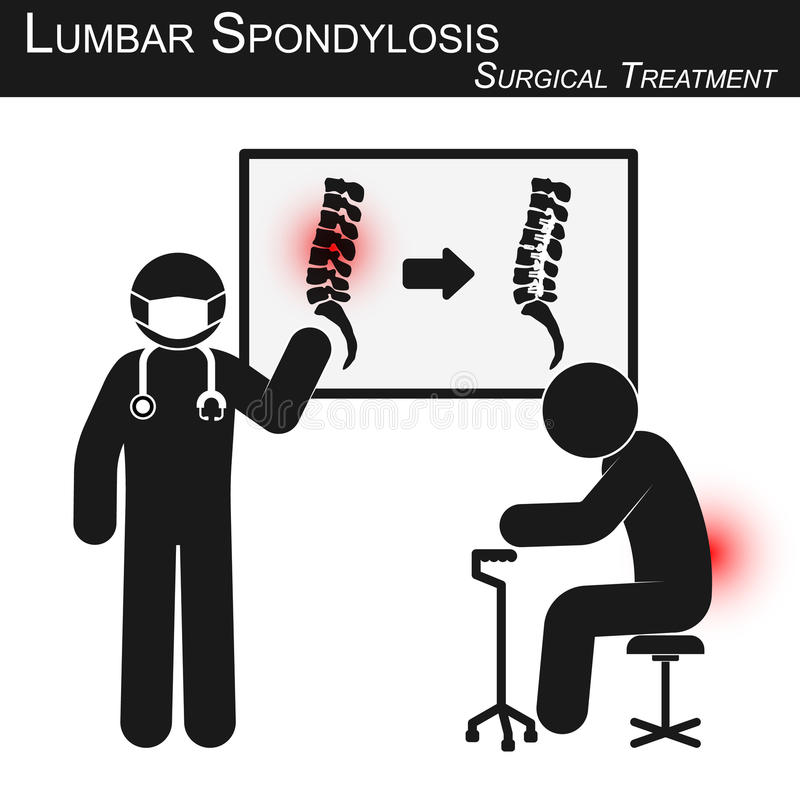 Doktorn förklarar om kirurgisk behandling av lumbal spondylosis och visar inbindningskopiering vektor illustrationer