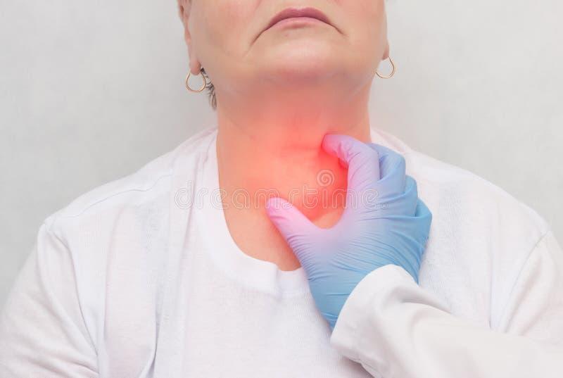 Doktorn känner sköldkörteln i en patient av en vuxen kvinna, sköldkörtelcancer, närbilden, knutpunkt royaltyfria bilder