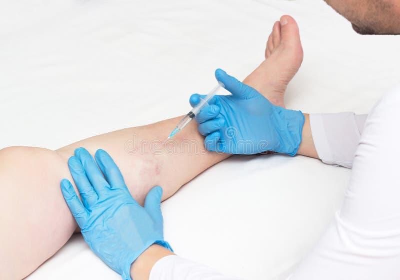 Doktorn utför sclerotherapy för åderbråcks åder på benen, behandling för den åderbråcks åder, kopieringsutrymme, injektion royaltyfria bilder