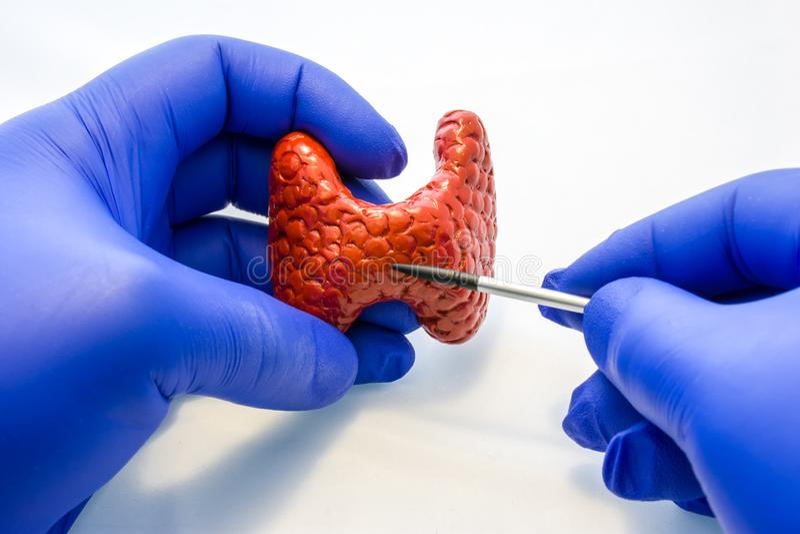 Doktors- eller forskarehåll i anatomisk modell för behandskad hand av sköldkörteln och punkter med pekaren på körtelkropp i annan arkivbild