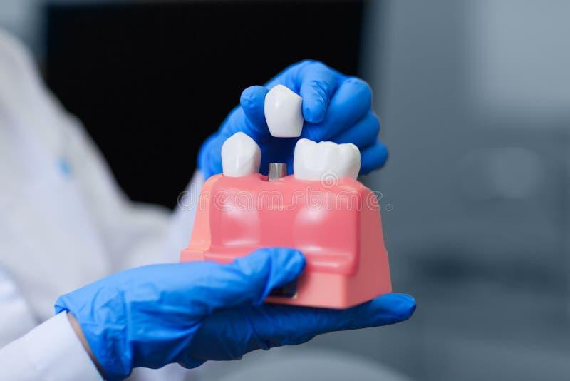Doktorsinnehavmodell av tänder med den tand- implantatet, closeup tut royaltyfri fotografi