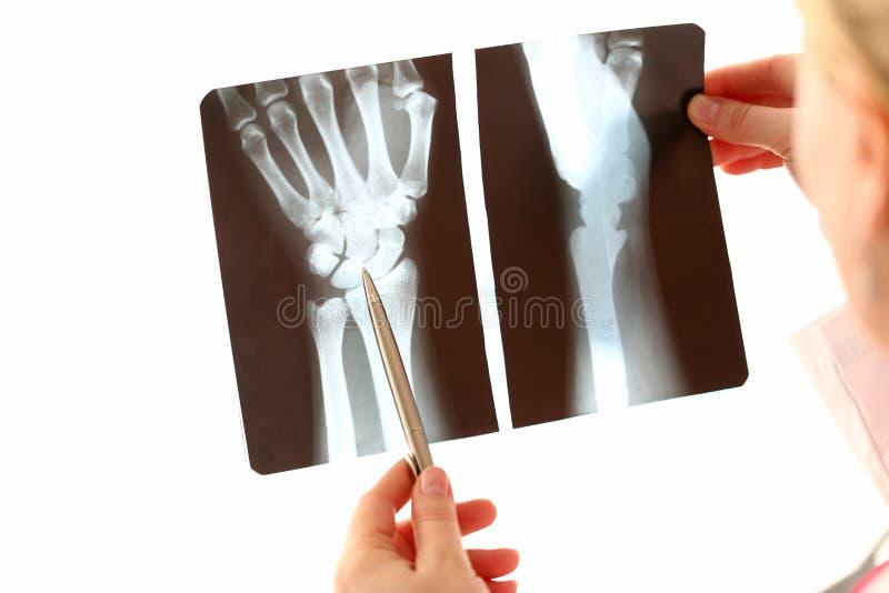 Doktorska Żeńska ręki mienia ręki Xray fotografia zdjęcia royalty free