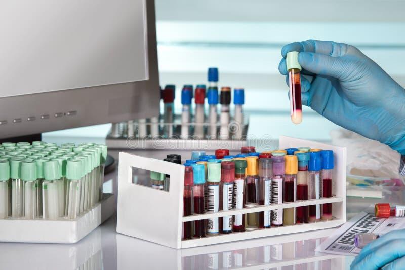 Doktorska mienia badania krwi tubka przed komputerem praca fotografia royalty free