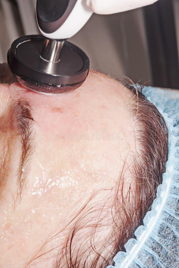 Doktorski dermatolog wykonuje twarzy radia dźwignięcie odmłodnieć skórę fotografia stock