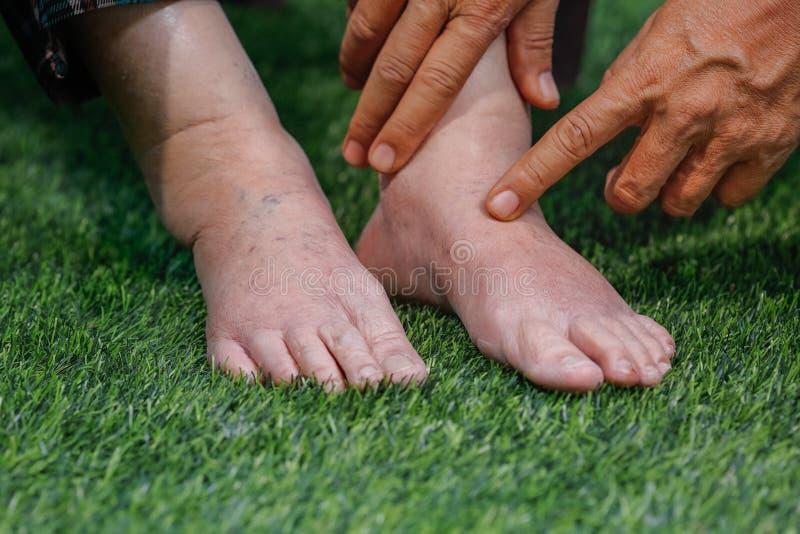 Doktorski oceniający starszą nabrzmiewającą stopę zdjęcie royalty free