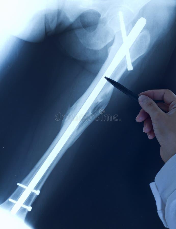 Doktorski ortopeda egzamininuje promieniowanie rentgenowskie zdjęcia stock