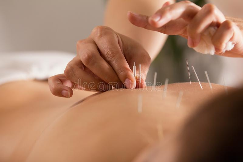 Doktorskie kij igły w dziewczyny ` s ciało na akupunkturze - zakończenie up zdjęcie royalty free