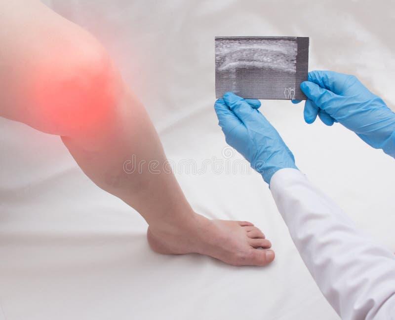 Doktorsortopeden håller en ultraljudbild av en kvinna som har ett öm knä Gonarthrosis artrit, närbild, kopieringsutrymme arkivbilder