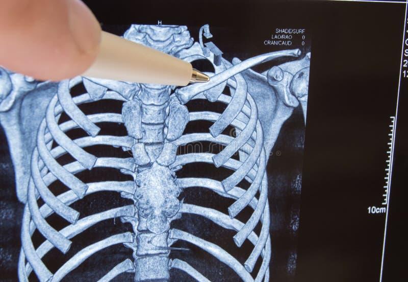 Doktorspunkter ut skriver på nyckelbenet i bild av tomography för datoren 3D Anatomiskt läge av nyckelbenet och den vanliga desti royaltyfria bilder