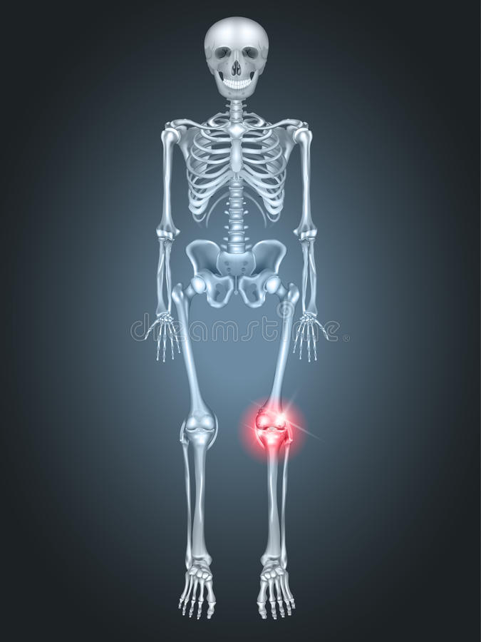 Dolor común de rodilla libre illustration