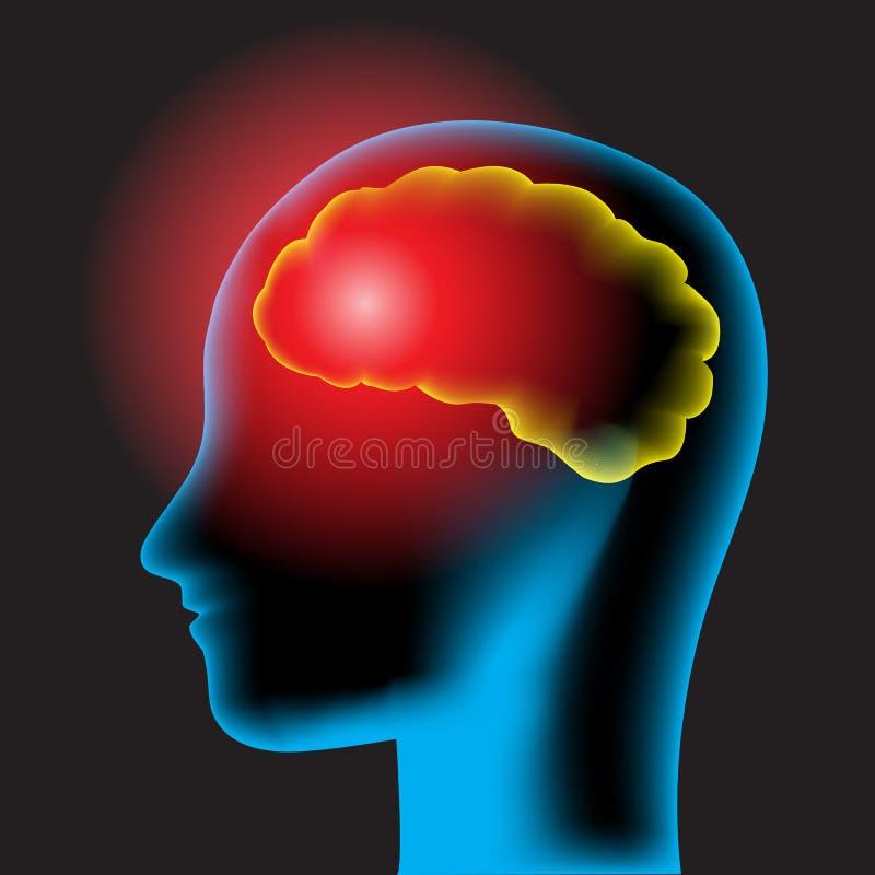 Dolor de cabeza stock de ilustración
