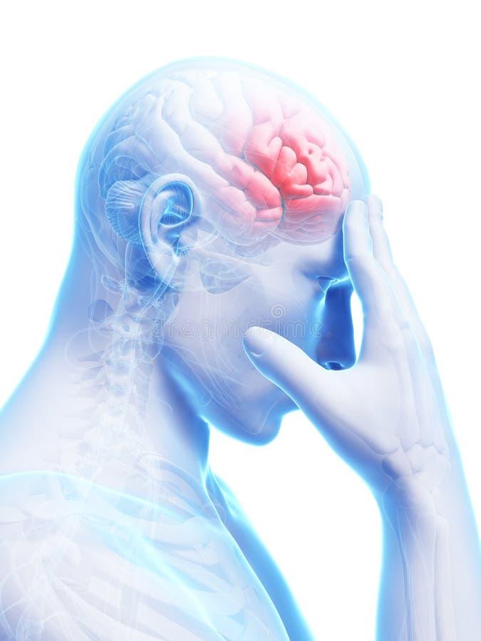 Dolor de cabeza del Megrim/ stock de ilustración