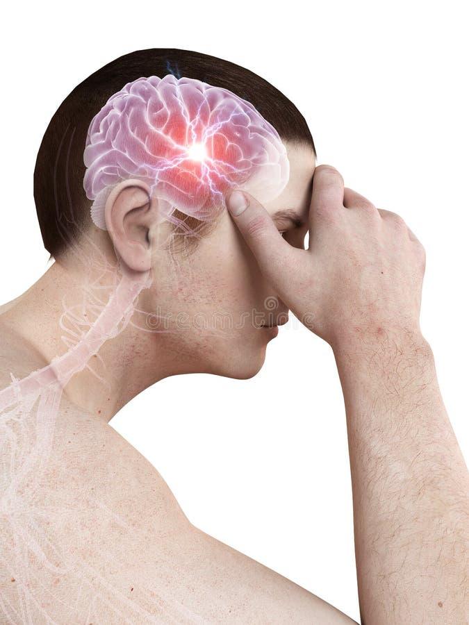 Dolor de cabeza/migrim ilustración del vector