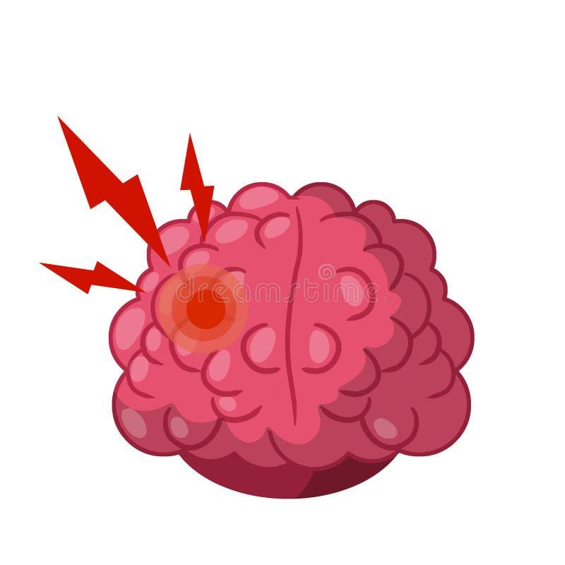Dolor de cabeza Punto rojo en el cerebro humano imágenes de archivo libres de regalías
