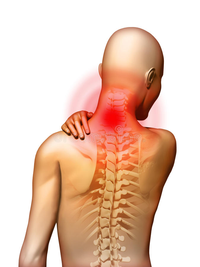 Dolor de cuello stock de ilustración