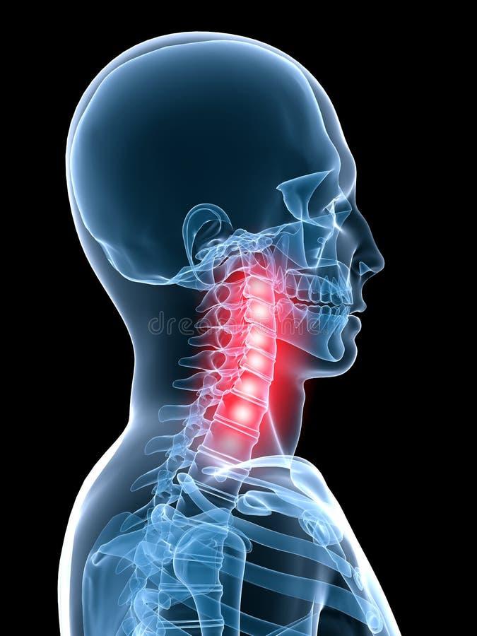 Dolor de cuello ilustración del vector
