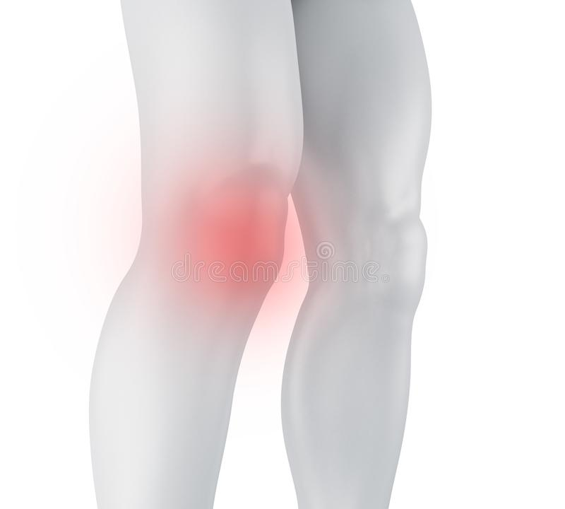 dolor de la rodilla 3d ilustración del vector